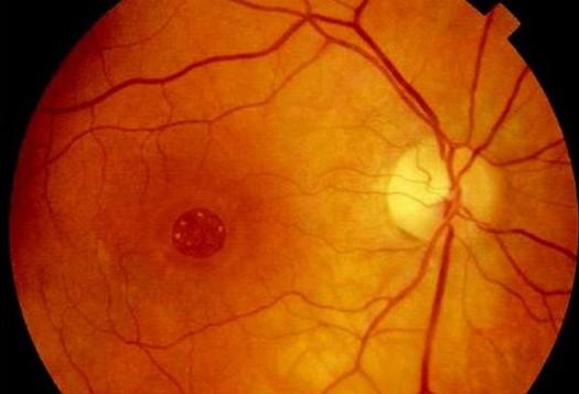 Macular Hole – Retina Vitreous Associates Medical Group